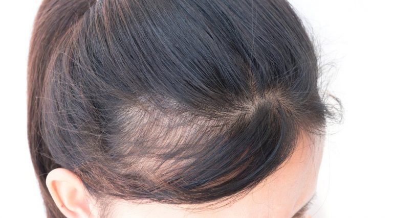 Tips to Maintain the Hair from Its Loss